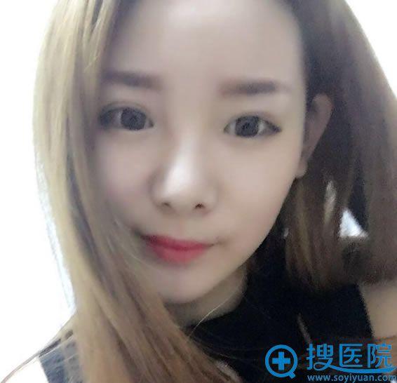 在北京华韩做隆鼻和双眼皮2个月效果
