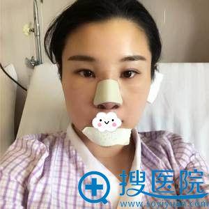 杭州华山连天美刘军隆鼻失败修复术后效果