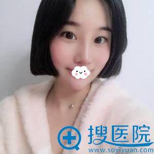 杭州华山连天美刘军假体隆鼻失败修复案例