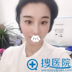 杭州华山连天美刘军鼻修复效果怎么样?