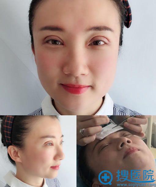 做完开眼角和双眼皮修复7天拆线图