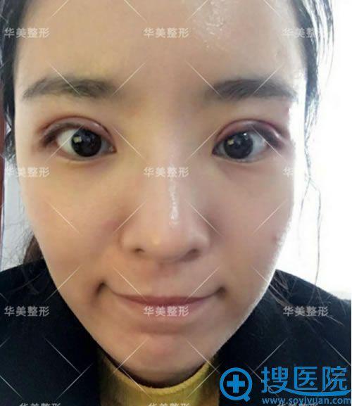 洛阳华美做双眼皮术后1天效果
