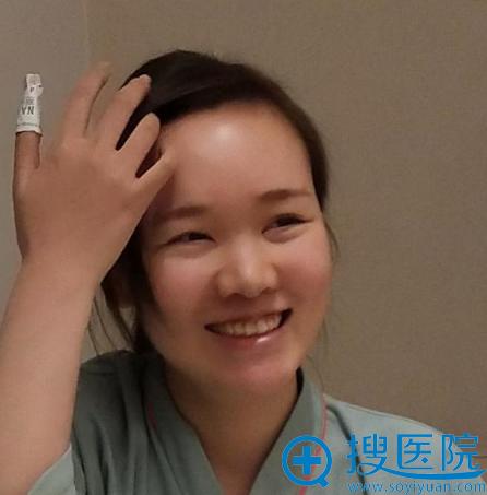 来上海薇琳医美做隆鼻前的照片