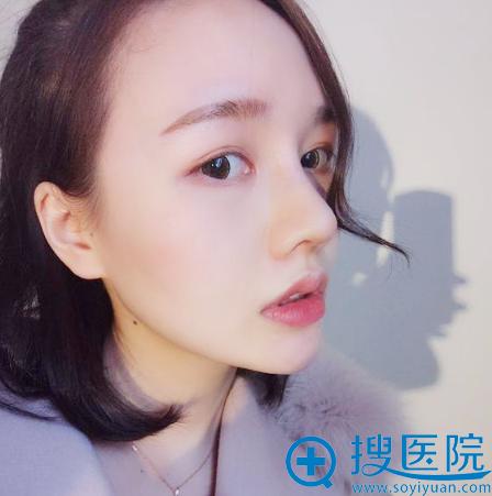 去上海薇琳医美找顾陆健做完隆鼻两周恢复图片