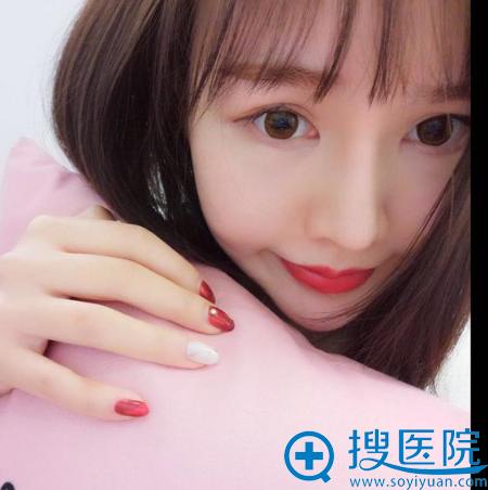 上海薇琳医美顾陆健做的隆鼻案例术后一个月效果图