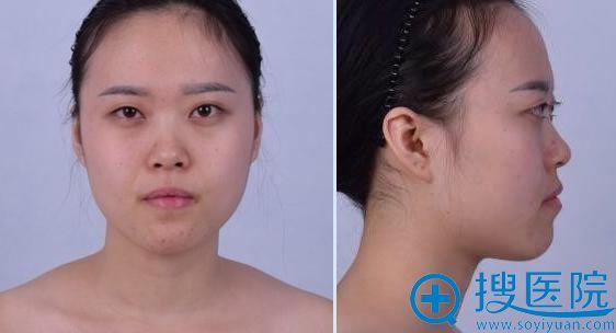 在北京联合丽格做隆鼻手术前