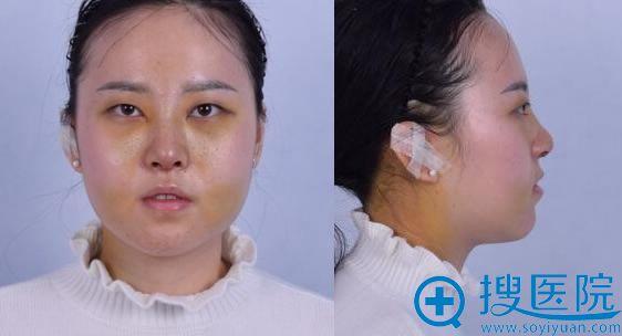 北京联合丽格做完隆鼻7天照片