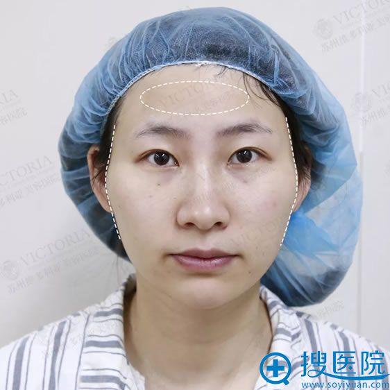 做手术前颧骨突出的照片