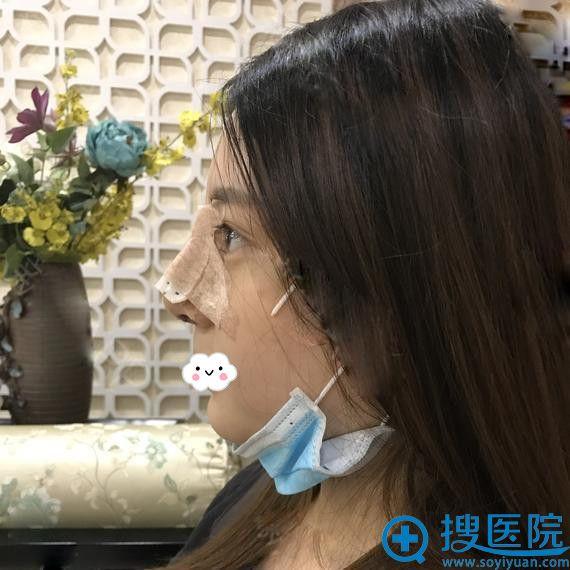 扬州美贝尔李志金假体隆鼻术后效果