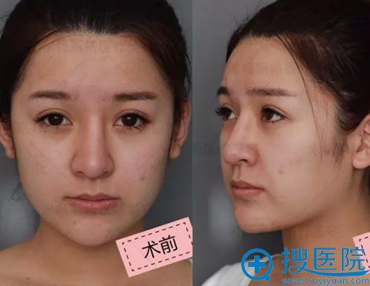 选择夏正义做硅胶鼻修复术前