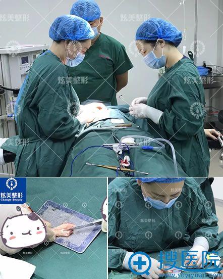北京炫美整形做肋骨隆鼻过程