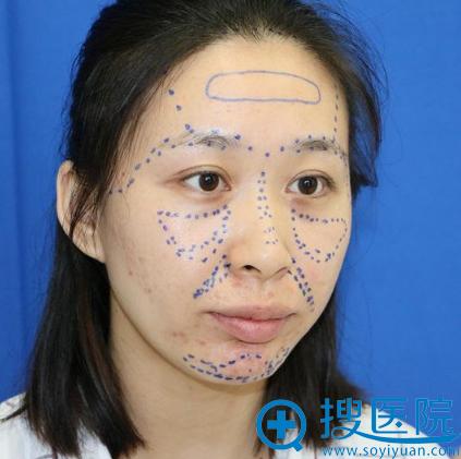 找上海美莱袁玉坤教授做脂肪填充前的照片