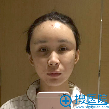 上海美莱袁玉坤教授脂肪填充术后即刻效果图