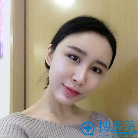 上海美莱袁玉坤自体脂肪填充全脸八天效果
