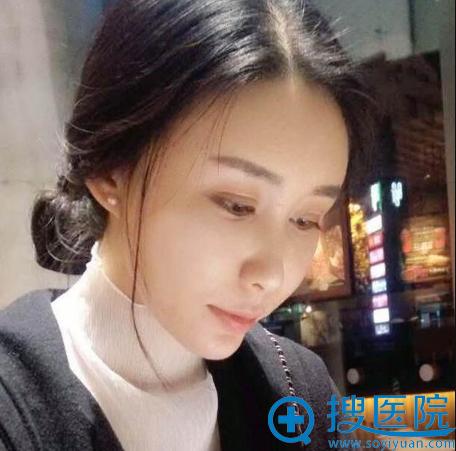 上海美莱袁玉坤做的全脸脂肪填充案例一个月效果图