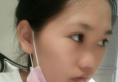 看了海南瑞韩和梦妮幻的案例后找海口红妆朱红振做了鼻综合隆鼻