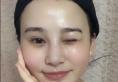 看了吴开泉和贾德渊的案例后找成都华颜黄富伟做了鼻综合隆鼻