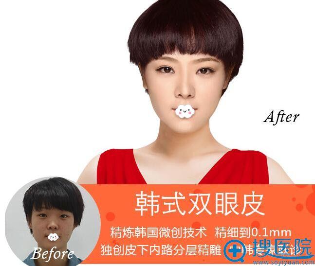 呼和浩特伊思韩式双眼皮案例