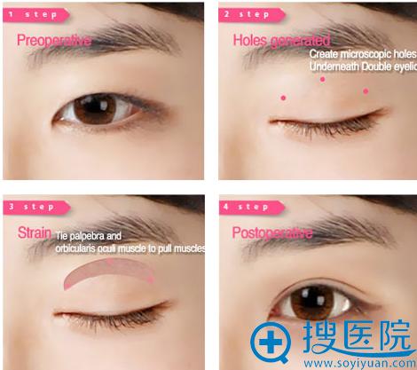 呼和浩特大韩韩式三点双眼皮案例效果对比