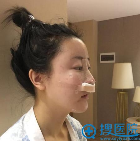 四川华美紫馨徐鹏肋软骨鼻综合隆鼻术后效果图