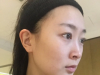 看了四川华美紫馨邱伟和陈杨的隆鼻案例后找徐鹏做了肋软骨隆鼻