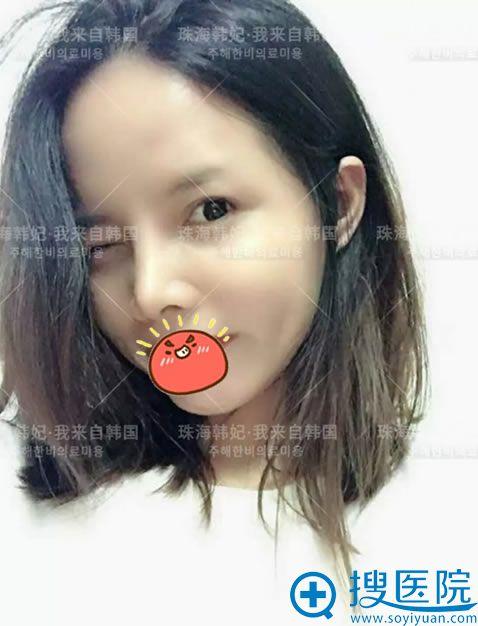 珠海韩妃申国铉隆鼻案例30天效果