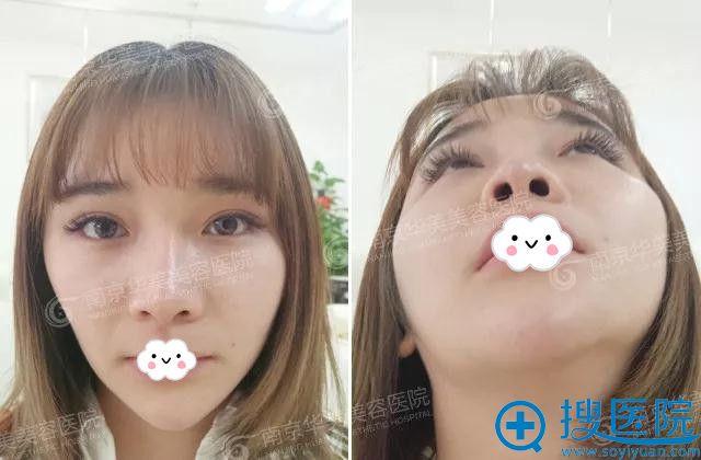 鼻 整形 写真
