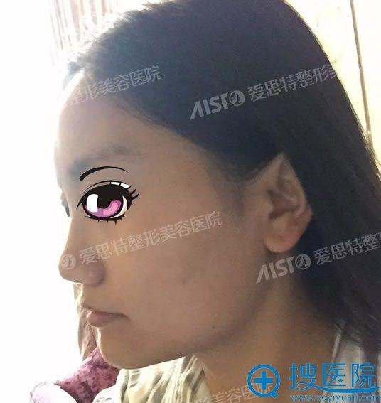 在重庆爱思特做颧骨下颌角手术前