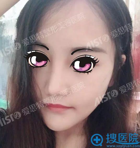 在重庆爱思特真伊做下颌角30天后