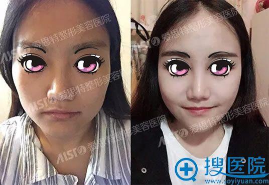 重庆爱思特高伟改脸型案例对比图