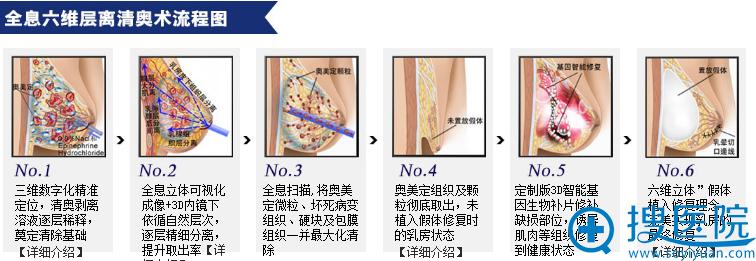 广州市荔湾人民医院全息六维层离清奥术流程图