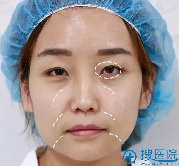 在苏州维多利亚做眼综合及脂肪移植术前照