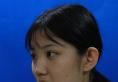 冲着赵贵庆医生的精湛医术才去武汉亚韩整形医院做的下颌角磨骨