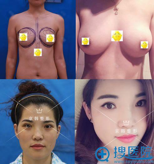 北京京韩王沛森脂肪填充和隆胸案例