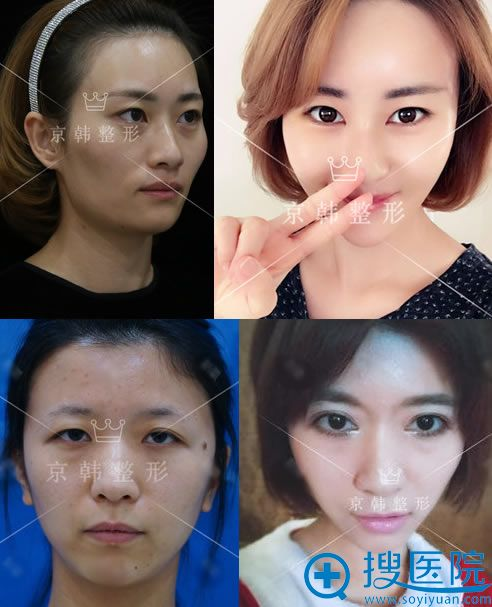 北京京韩张振做脂肪填充和双眼皮案例