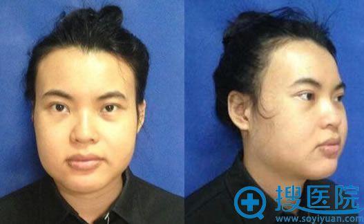 选择北京八大处做下颌角20天后