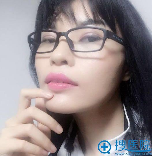 北京八大处解芳下颌角案例50天效果