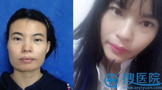 北京八大处解芳下颌角案例对比图