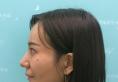 之前在杭州瑞丽做了双眼皮和垫下巴这次又来做了自体脂肪填充