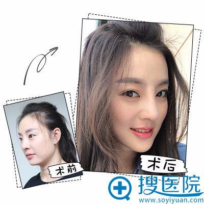 上海时光整形医院郑志玉隆鼻案例图