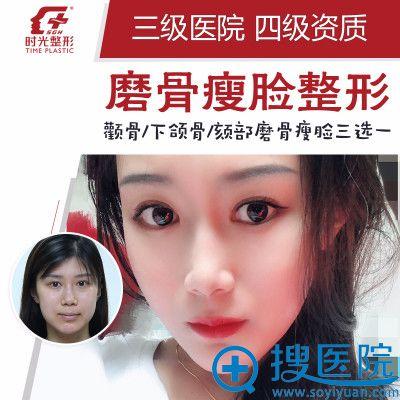 上海时光整形医院何晋龙磨颧骨整形案例图