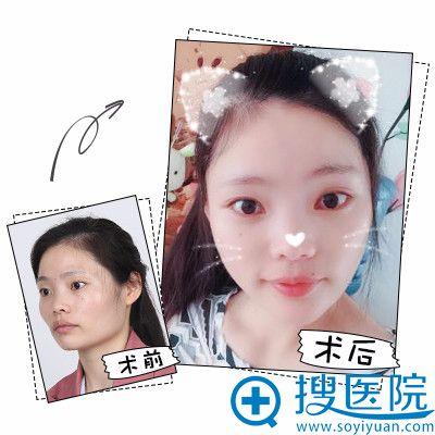 上海时光整形医院何晋龙下颌角整形案例图