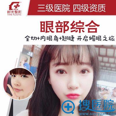 上海时光整形医院李静林切开双眼皮案例图