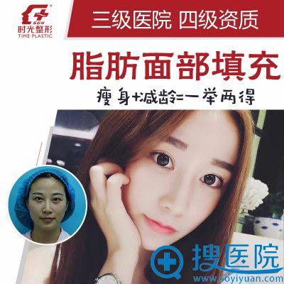 上海时光整形医院许黎平自体脂肪面部填充案例