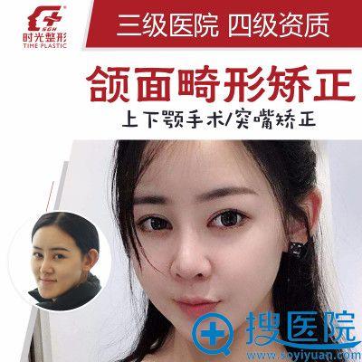 上海时光整形医院何晋龙上下颚手术/突嘴矫正案例