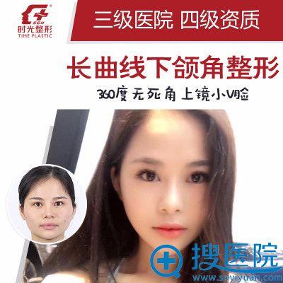 上海时光整形医院何晋龙颧骨+下颌角+下巴整形案例