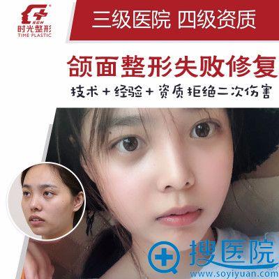 上海时光整形医院何晋龙颌面整形失败修复案例图