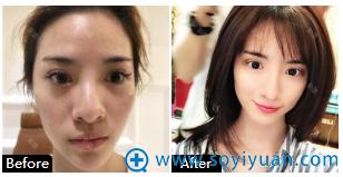 上海薇琳医美顾陆建自体耳软骨隆鼻案例图