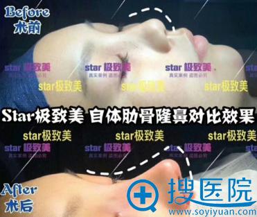 上海star美整形医院自体肋软骨鼻综合隆鼻案例