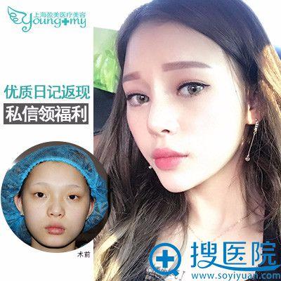 上海盈美整形医院杨璐院长双眼皮案例图